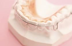 八潮市にあるなかつか歯科医院の歯並びが気になる方へのイメージ